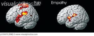 brain_response_to_pain_mri_scans_p335070